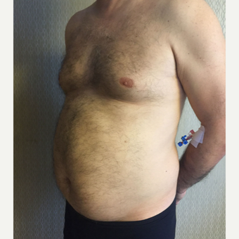 35-44 year old man treated with Liposuction on Chest and Abdomen area before 3569030