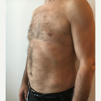 35-44 year old man treated with Liposuction on Chest and Abdomen area after 3569030