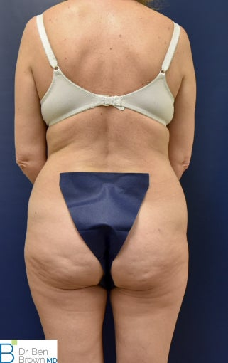 45-54 year old woman treated with Liposuction, Abdominopalsty and Fat Grafting to lateral butt 2872908