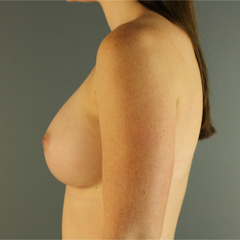 18-24 year old woman treated with Breast Augmentation after 3670240