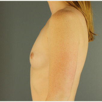 18-24 year old woman treated with Breast Augmentation before 3670240