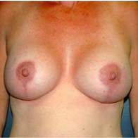 45 year old woman treated with Breast Lift with Implants after 3665979