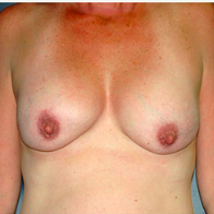 45 year old woman treated with Breast Lift with Implants before 3665979