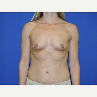 45-54 year old woman treated with Breast Augmentation before 3331433