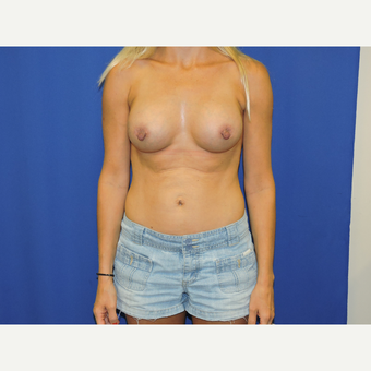 45-54 year old woman treated with Breast Augmentation after 3331433