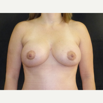 35-44 year old man treated with Breast Lift with Implants after 3377343