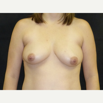 35-44 year old man treated with Breast Lift with Implants before 3377343