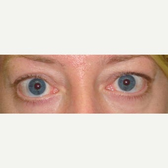 35-44 year old woman treated with Eyelid Retraction Repair before 1980658