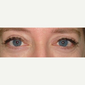 35-44 year old woman treated with Eyelid Retraction Repair after 1980658