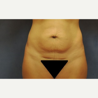 35-44 year old woman treated with Tummy Tuck before 3344971