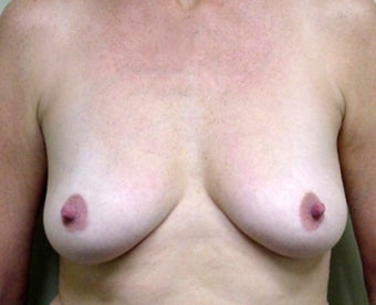 Breast Lift and Augmentation before 1341189