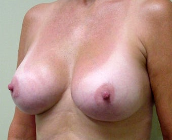Breast Lift and Augmentation 1341189