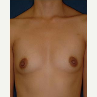 18-24 year old woman treated with Breast Augmentation before 3577103