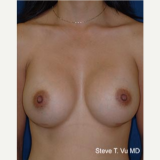 18-24 year old woman treated with Breast Augmentation after 3577103