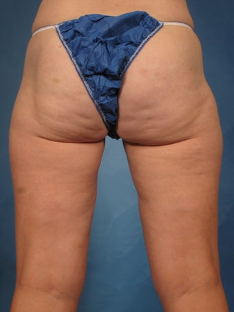 45 year old treated with CoolSculpting of the inner thighs 1192722