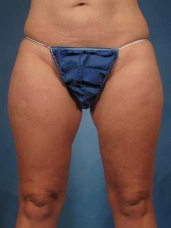 45 year old treated with CoolSculpting of the inner thighs before 1192722