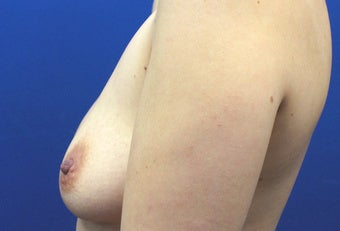 30 Year Old Woman with Silicone Gel Breast Implants 1390193