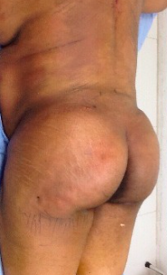 45-54 year old woman treated with Brazilian Butt Lift BBL Trunk Liposculpture, 46-yo, 5'6 253 lbs BMI 34.31, Postop day 1Dr. James S McAdoo,