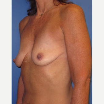 45-54 year old woman treated with Breast Lift with Implants (339cc) before 3760021
