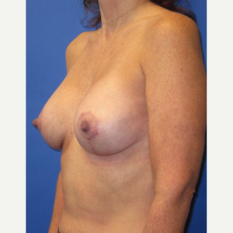 45-54 year old woman treated with Breast Lift with Implants (339cc) after 3760021