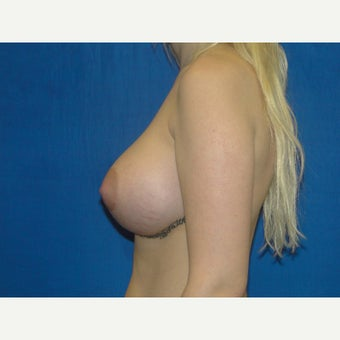 Breast Augmentation 475 cc Silicone Implants 1581748