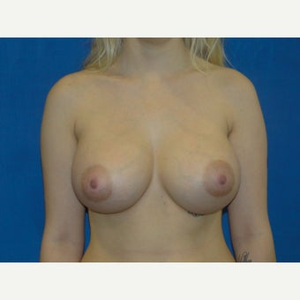 Breast Augmentation 475 cc Silicone Implants after 1581748