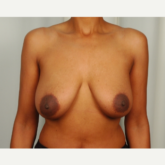 45-54 year old woman treated with Breast Lift before 3026821