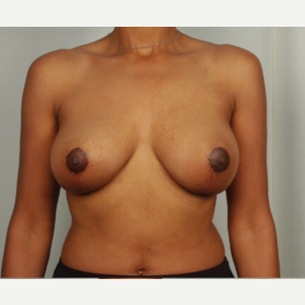 45-54 year old woman treated with Breast Lift after 3026821