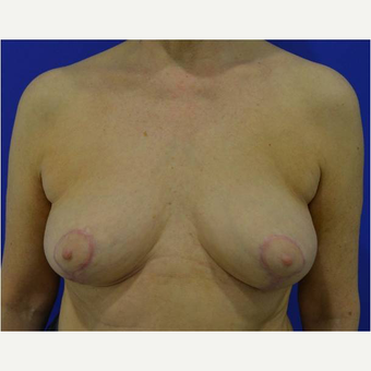 65-74 year old woman treated with Breast Lift after 3731145