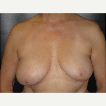 65-74 year old woman treated with Breast Lift before 3731145