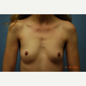 25-34 year old woman treated with Breast Augmentation before 3781226