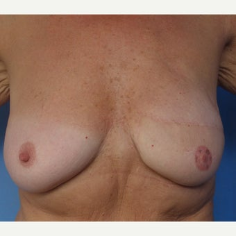 55-64 year old woman treated with Breast Reconstruction after 1574668