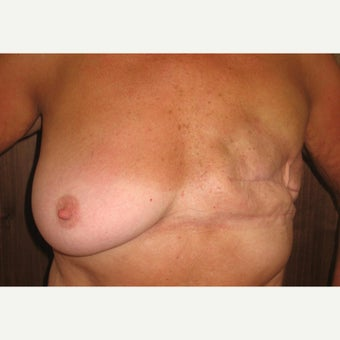 55-64 year old woman treated with Breast Reconstruction before 1574668