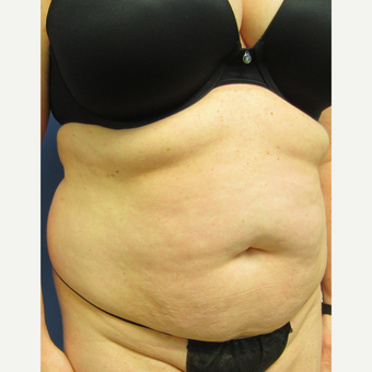 35-44 year old woman treated with Tummy Tuck & Limited Liposuction before 3082696