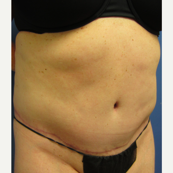 35-44 year old woman treated with Tummy Tuck & Limited Liposuction after 3082696