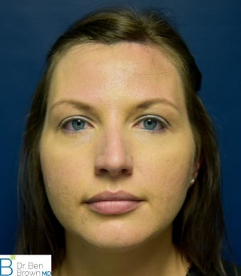 25-34 year old woman treated with Rhinoplasty 3486806