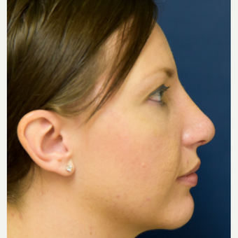 25-34 year old woman treated with Rhinoplasty after 3486806