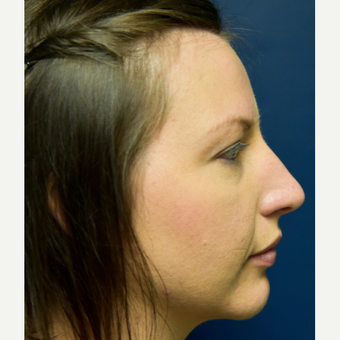 25-34 year old woman treated with Rhinoplasty before 3486806