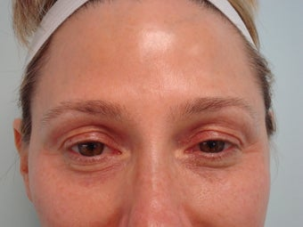 Under Eye filler treatment before 583358