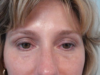 Under Eye filler treatment after 583358