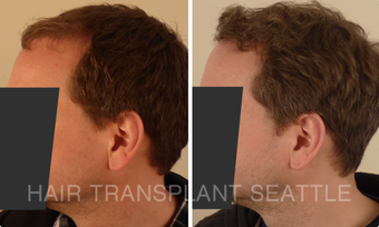 45-54 year old man treated with Hair Transplant before 2989946