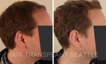 45-54 year old man treated with Hair Transplant after 2989946