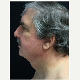 55-64 year old man treated with Facelift after 3219499