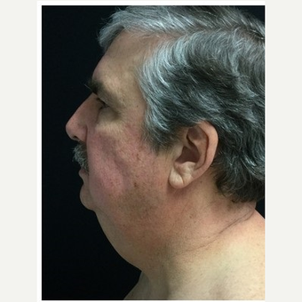 55-64 year old man treated with Facelift before 3219499