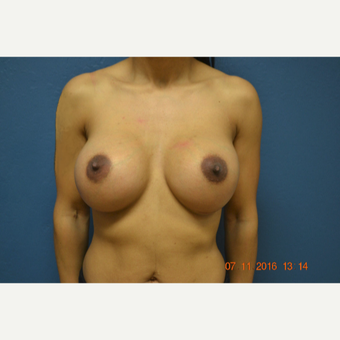 25-34 year old woman treated with Breast Augmentation after 3611014