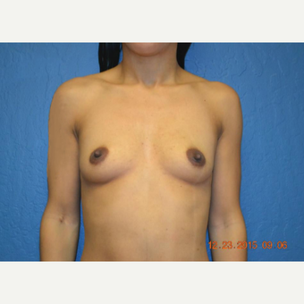 25-34 year old woman treated with Breast Augmentation before 3611014