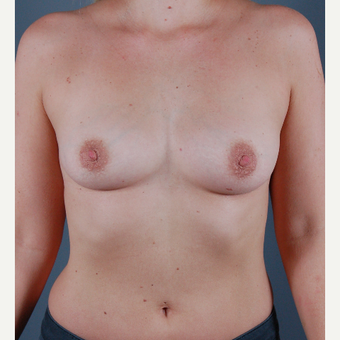 25-34 year old woman treated with Breast Augmentation before 3310839