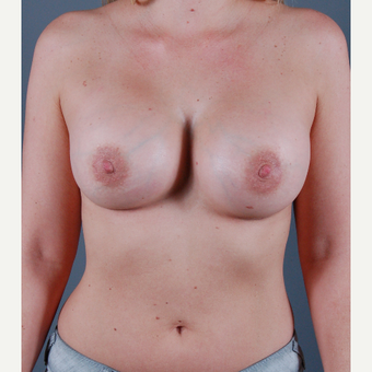 25-34 year old woman treated with Breast Augmentation after 3310839