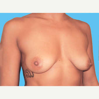 Breast Augmentation before 3732729