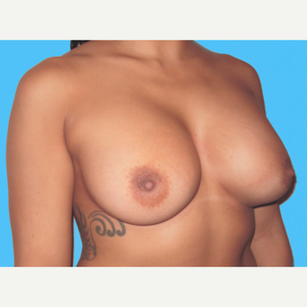 Breast Augmentation after 3732729